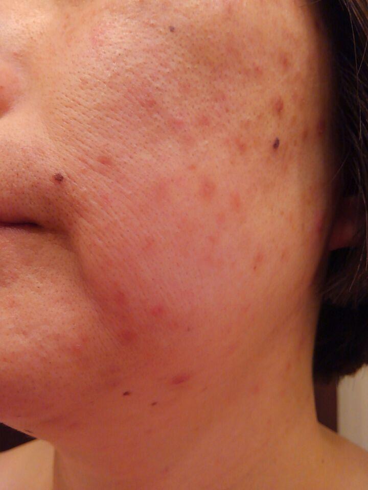顔面の治らない湿疹(痒疹)左