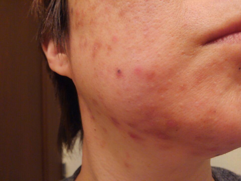 【痒疹・治らない湿疹の謎13】タクロリムス軟膏をひと月使い続けた皮膚状態お見せします右