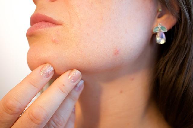 【痒疹・治らない湿疹の謎13】タクロリムス軟膏をひと月使い続けた皮膚状態お見せします